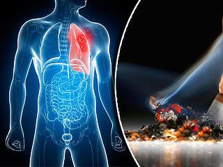 A dohányosok fele átlagosan 14 évvel korábban hal meg