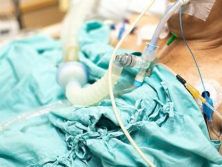 MOK: összeroppannak és elmenekülnek az orvosok a halottak látványától