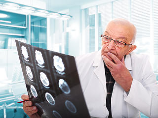 Hiába védenék a 65 évesnél idősebb háziorvosokat, nincs helyettük más