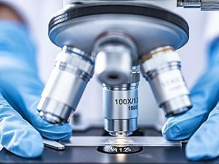 4iG: világelső orvosdiagnosztikai fejlesztésen dolgozik a Pécsi Tudományegyetemmel