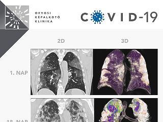Így néz ki a koronavírus miatti tüdőgyulladás